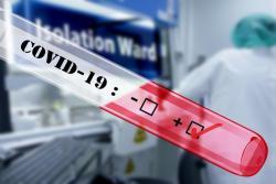 В Украине зафиксировано 156 случаев COVID-19