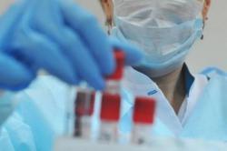 В Киеве зафиксировали еще три случая инфицирования коронавирусом