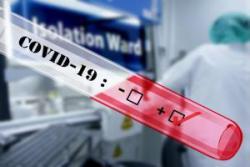 В Украине зафиксирован 41 лабораторно подтвержденный случай COVID-19